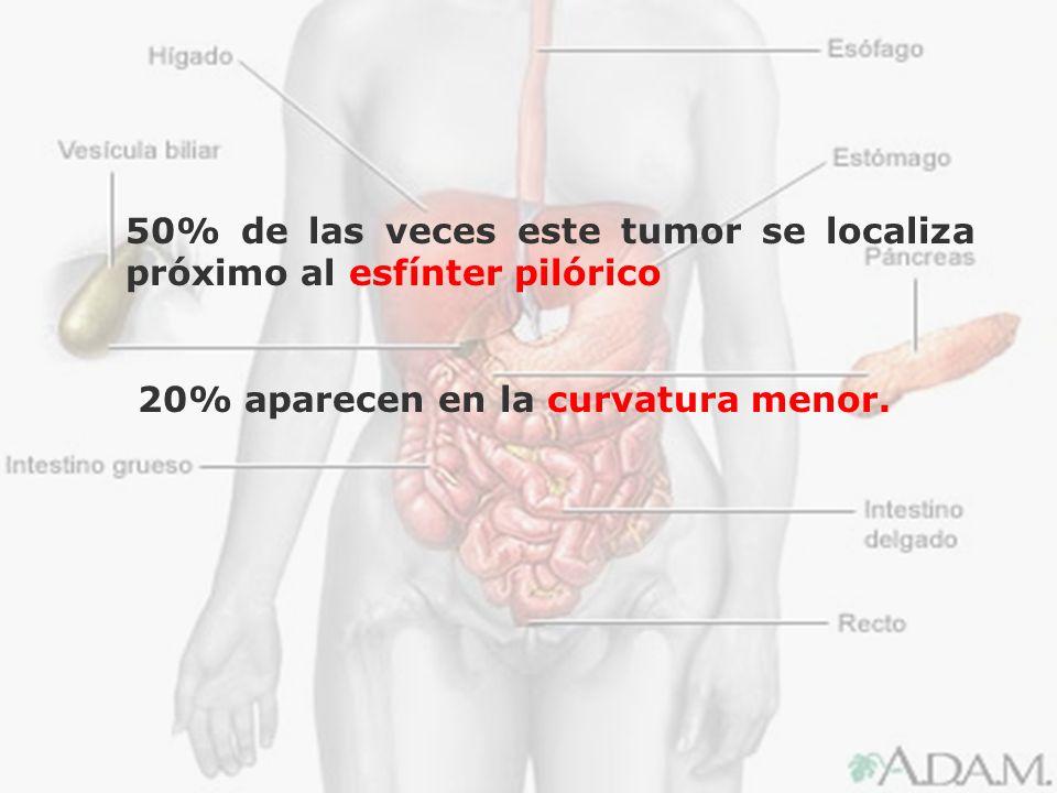 50% de las veces este tumor se localiza próximo al esfínter pilórico