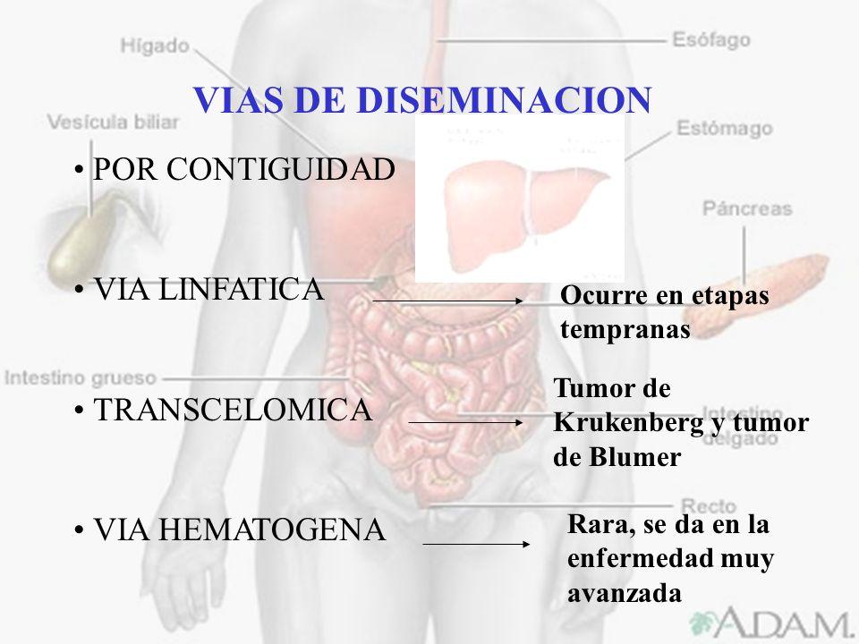 VIAS DE DISEMINACION POR CONTIGUIDAD VIA LINFATICA TRANSCELOMICA