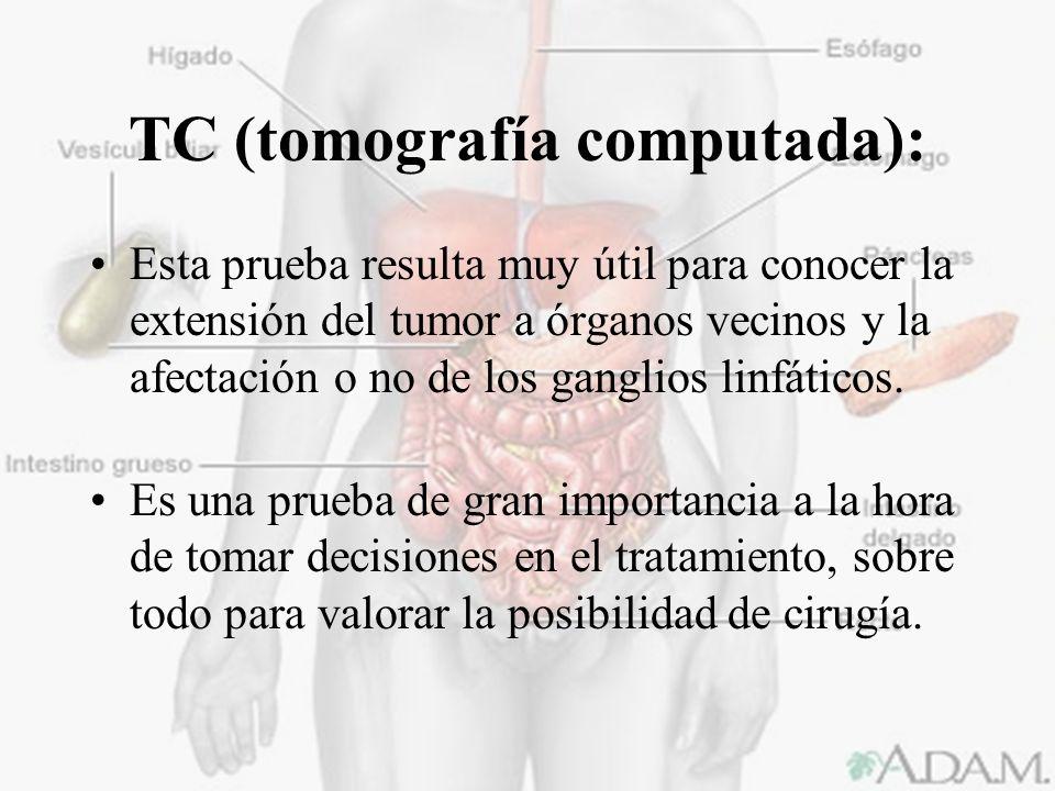 TC (tomografía computada):
