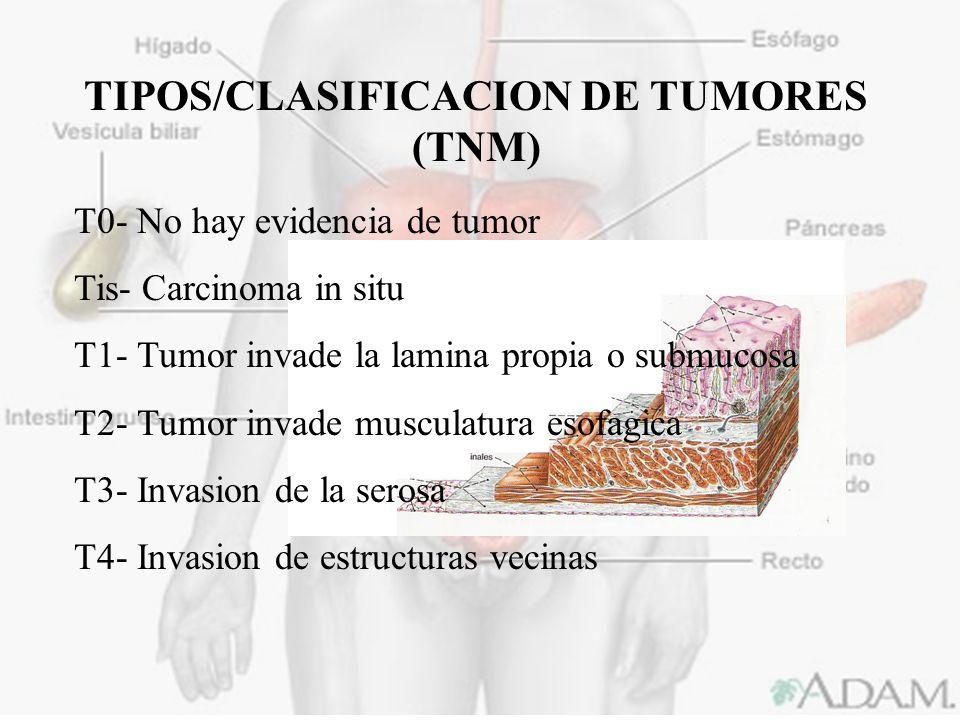 TIPOS/CLASIFICACION DE TUMORES (TNM)