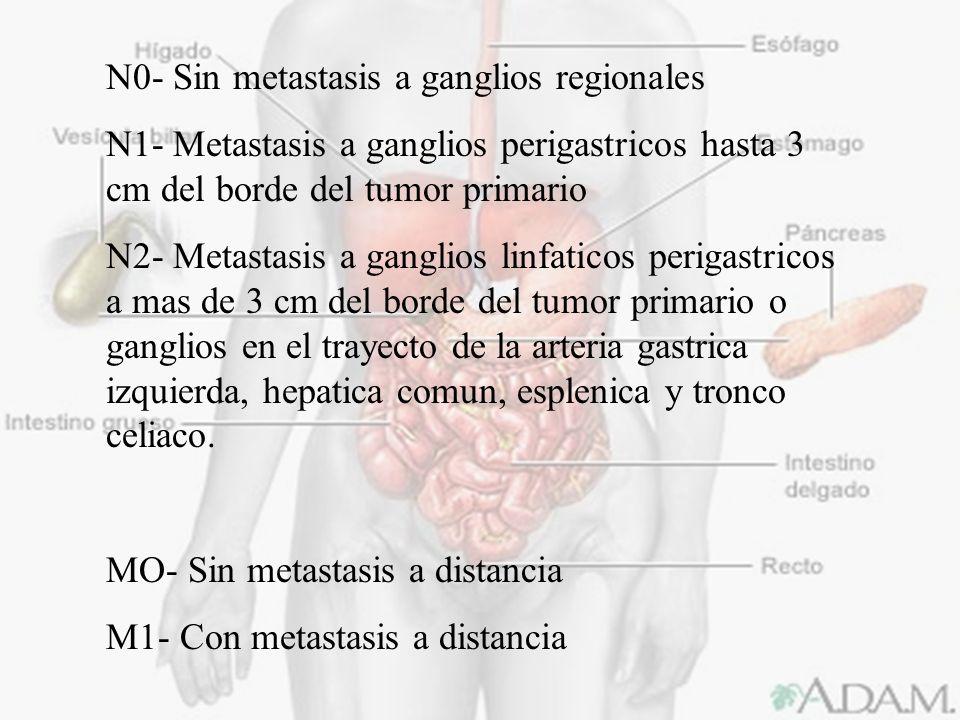 N0- Sin metastasis a ganglios regionales