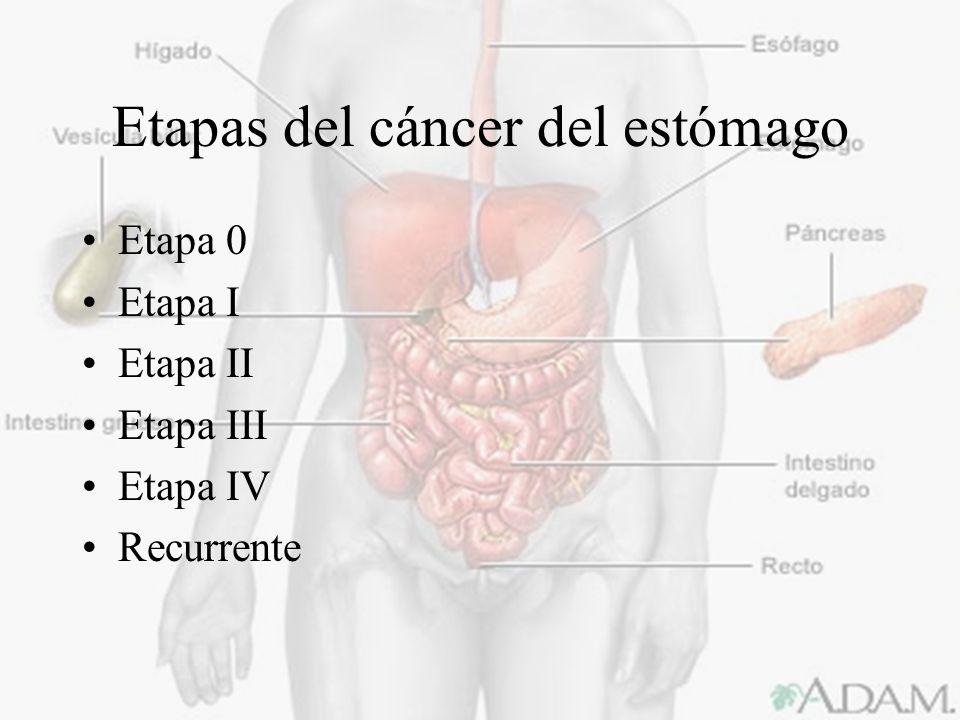 Etapas del cáncer del estómago
