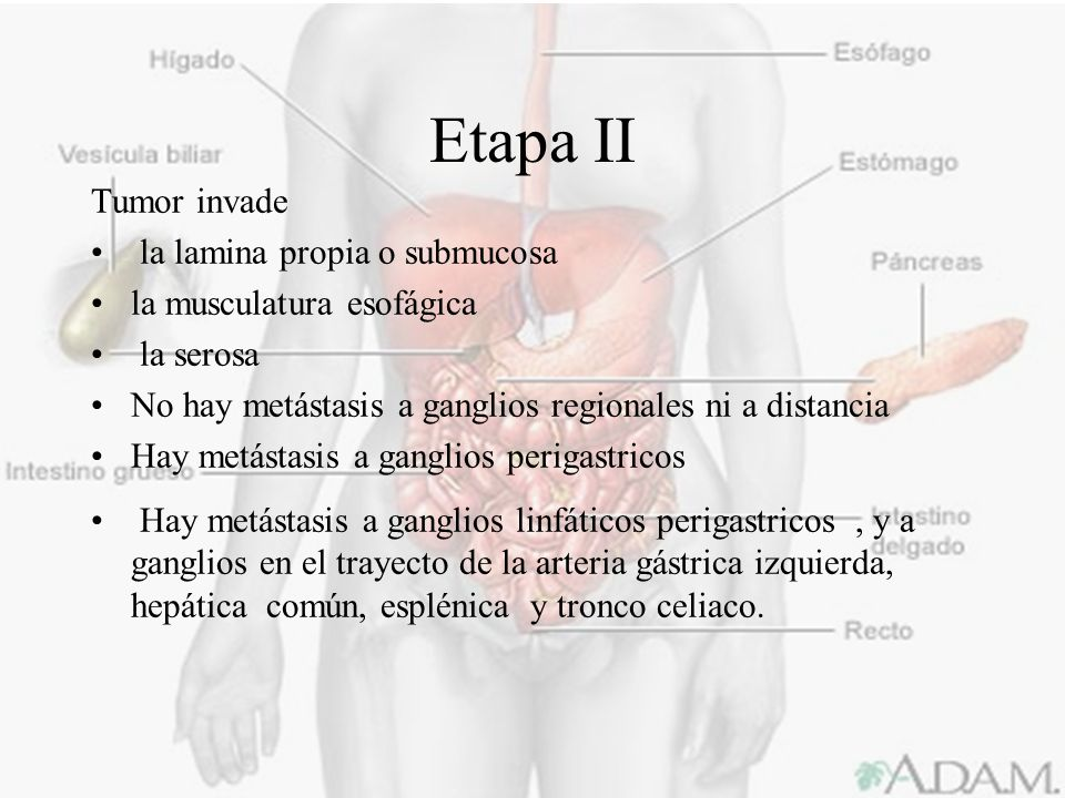 Etapa II Tumor invade la lamina propia o submucosa