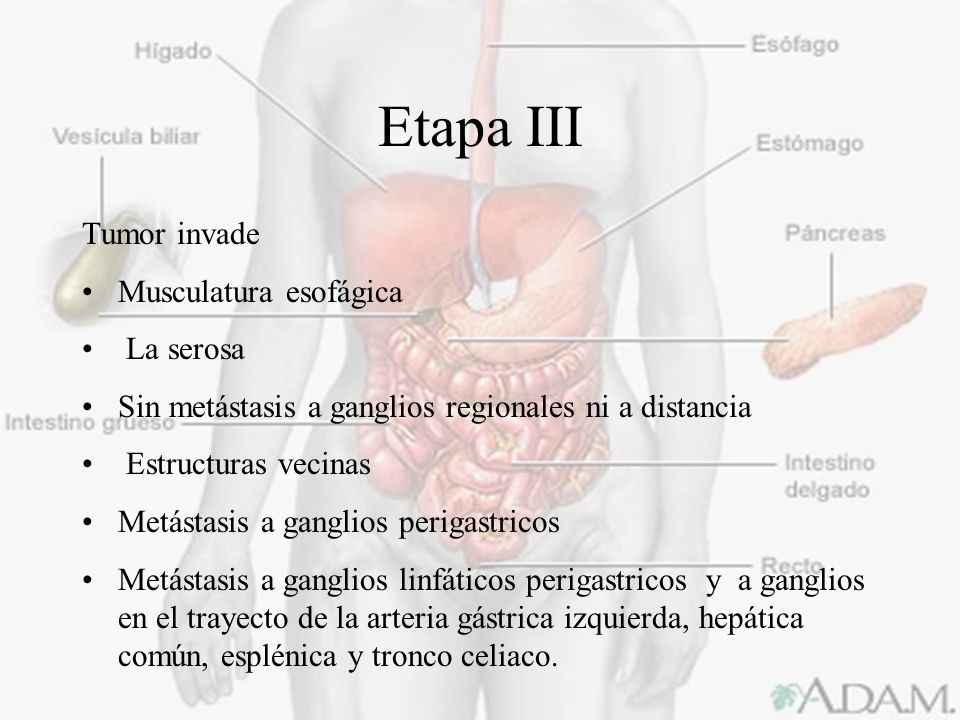 Etapa III Tumor invade Musculatura esofágica La serosa