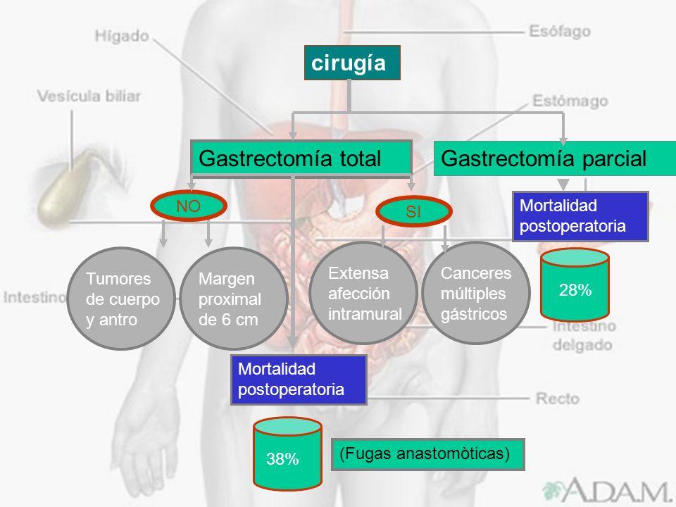 cirugía Gastrectomía total Gastrectomía parcial NO