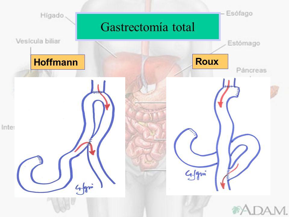 Gastrectomía total Hoffmann Roux