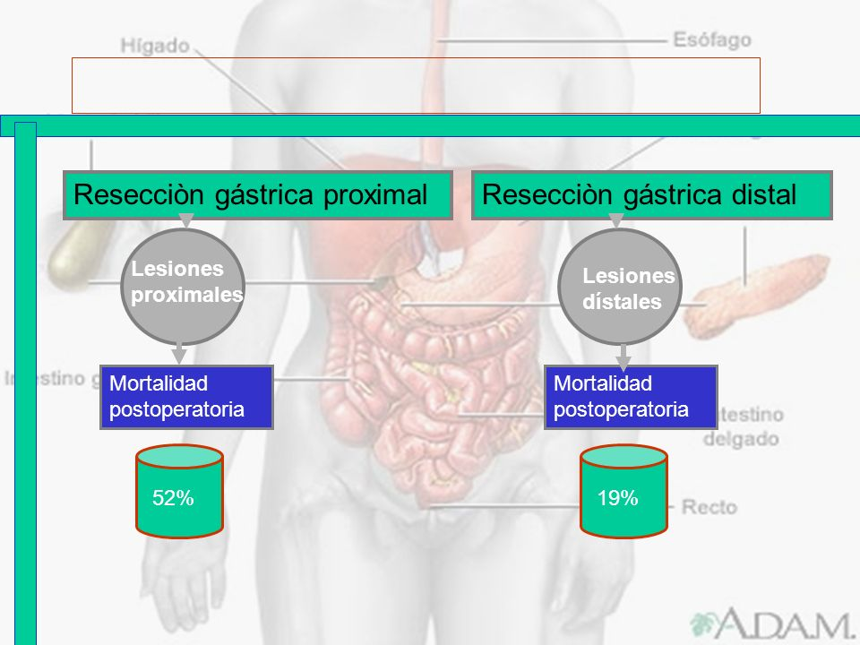 Resecciòn gástrica proximal Resecciòn gástrica distal
