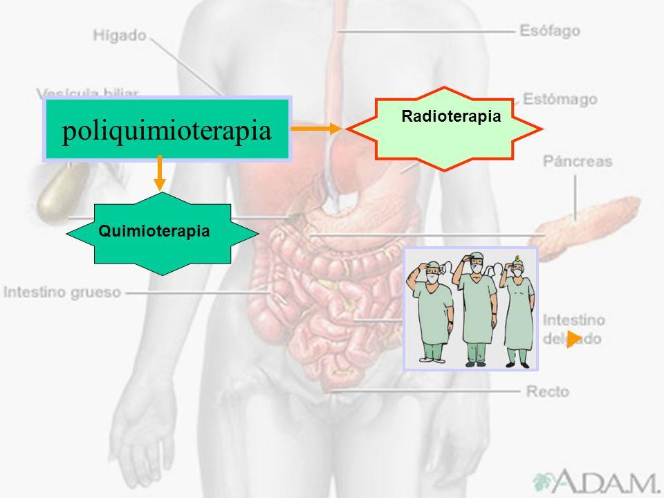 poliquimioterapia Radioterapia Quimioterapia