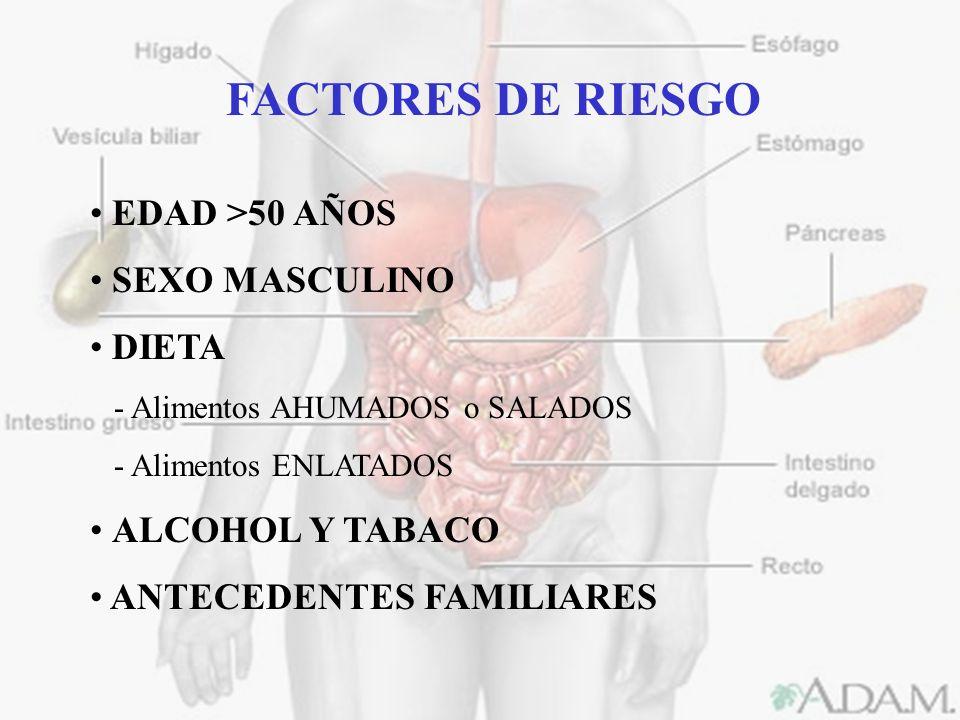 FACTORES DE RIESGO EDAD >50 AÑOS SEXO MASCULINO DIETA