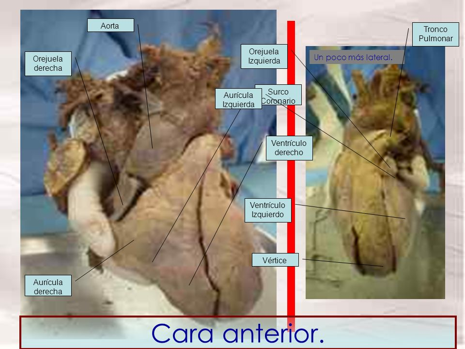 Cara anterior. Aorta Tronco Pulmonar Orejuela Izquierda