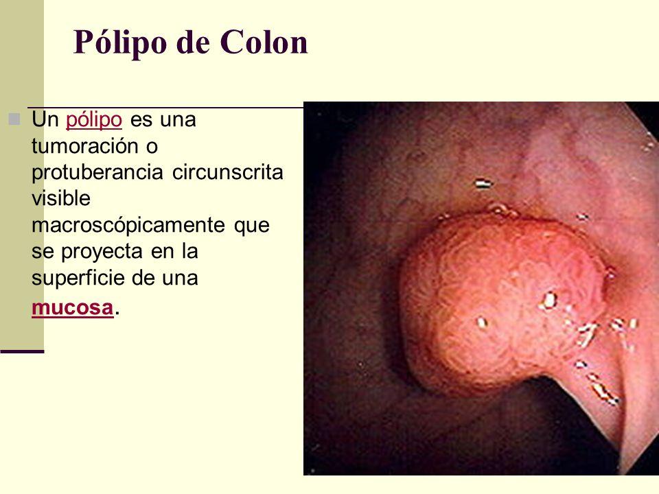 Pólipo de Colon Un pólipo es una tumoración o protuberancia circunscrita visible macroscópicamente que se proyecta en la superficie de una mucosa.