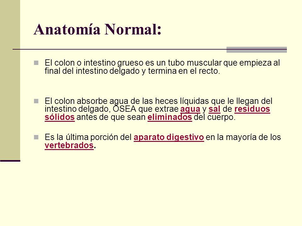 Anatomía Normal: El colon o intestino grueso es un tubo muscular que empieza al final del intestino delgado y termina en el recto.