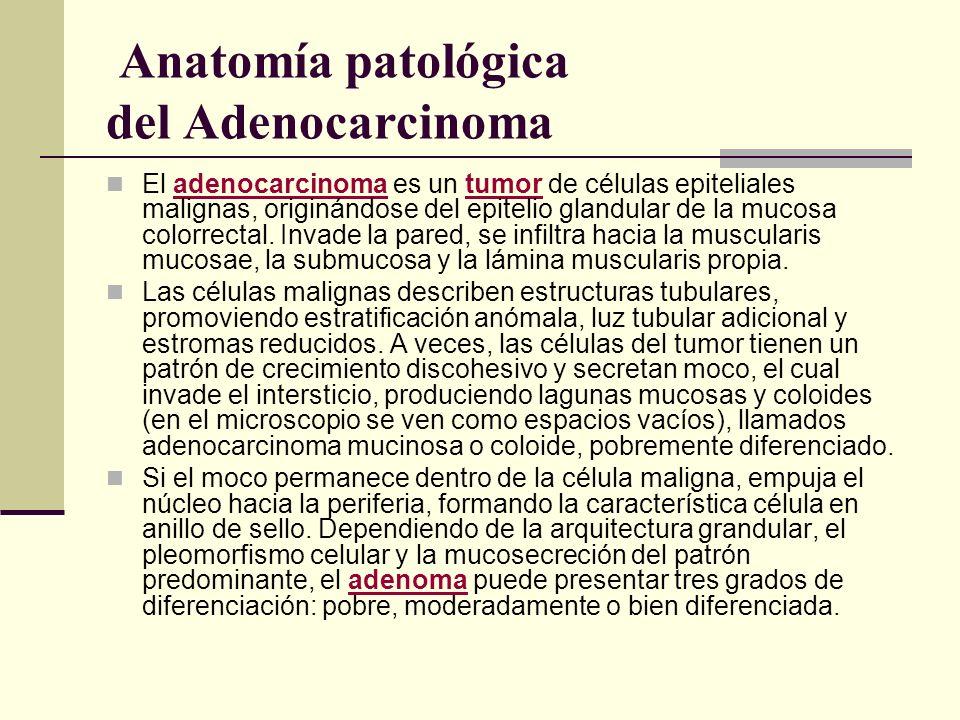 Anatomía patológica del Adenocarcinoma