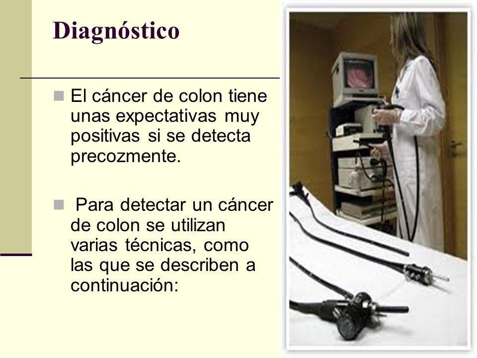 Diagnóstico El cáncer de colon tiene unas expectativas muy positivas si se detecta precozmente.