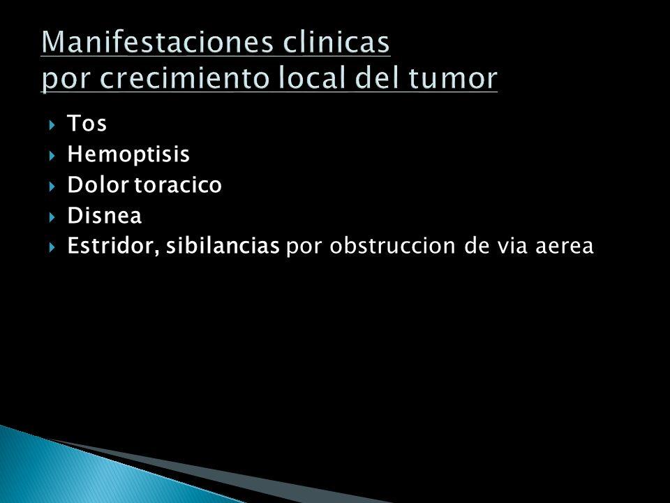 Manifestaciones clinicas por crecimiento local del tumor