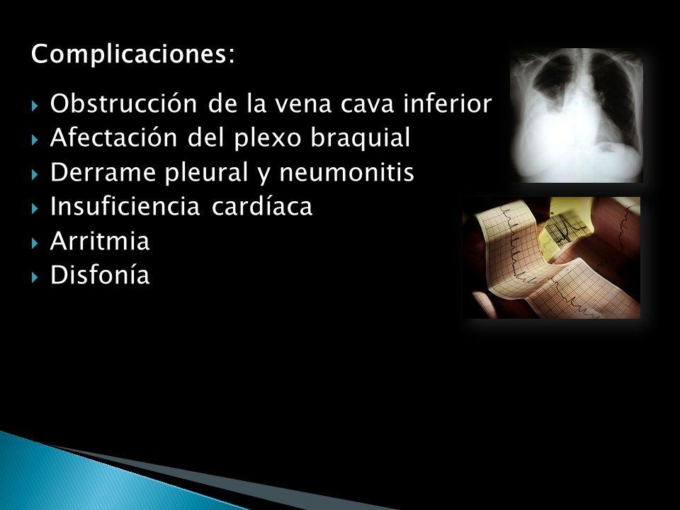 Complicaciones: Obstrucción de la vena cava inferior. Afectación del plexo braquial. Derrame pleural y neumonitis.
