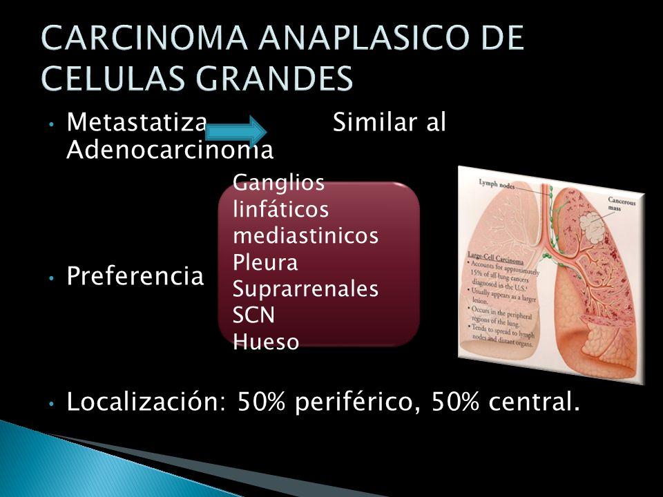 CARCINOMA ANAPLASICO DE CELULAS GRANDES