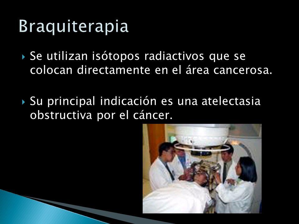 Braquiterapia Se utilizan isótopos radiactivos que se colocan directamente en el área cancerosa.