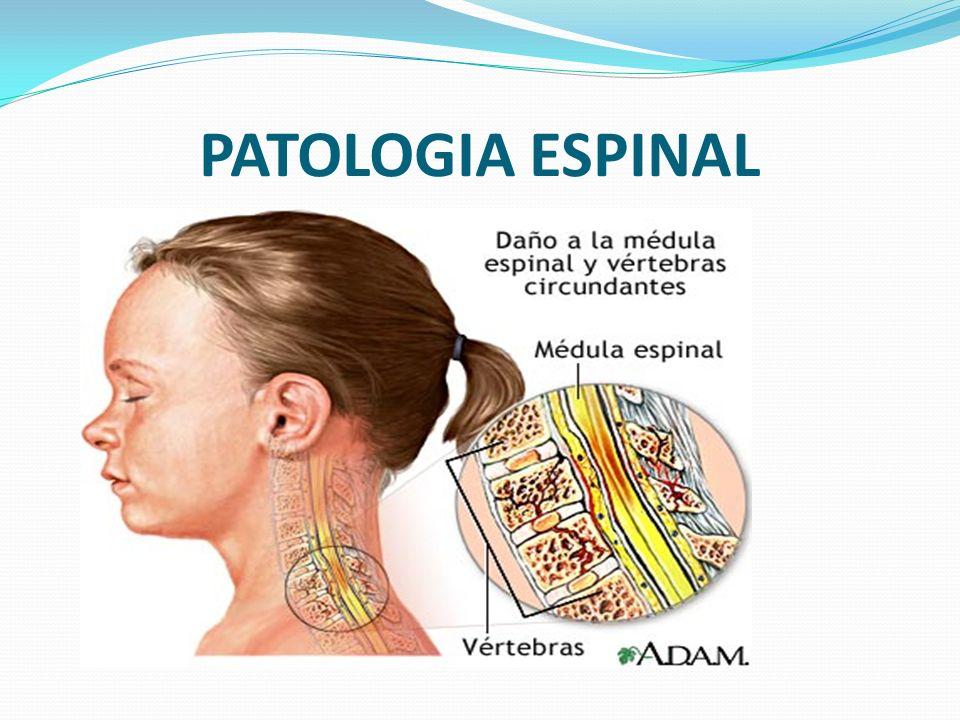 PATOLOGIA ESPINAL