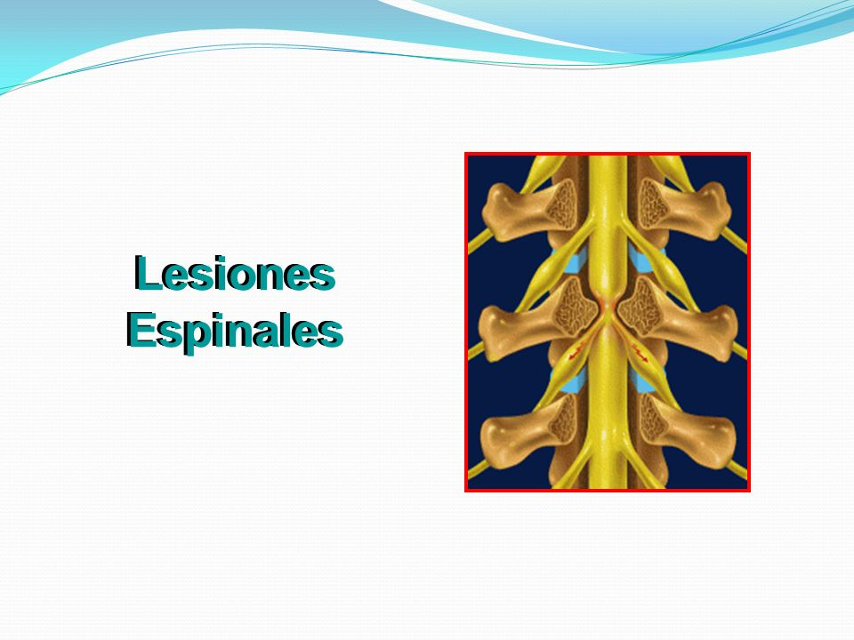 Lesiones Espinales 38