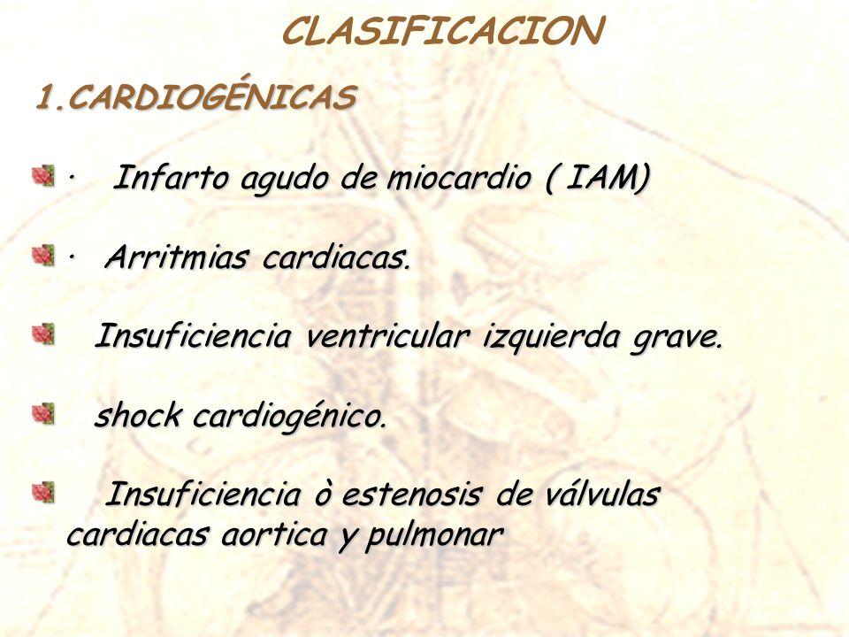 CLASIFICACION CARDIOGÉNICAS · Infarto agudo de miocardio ( IAM)