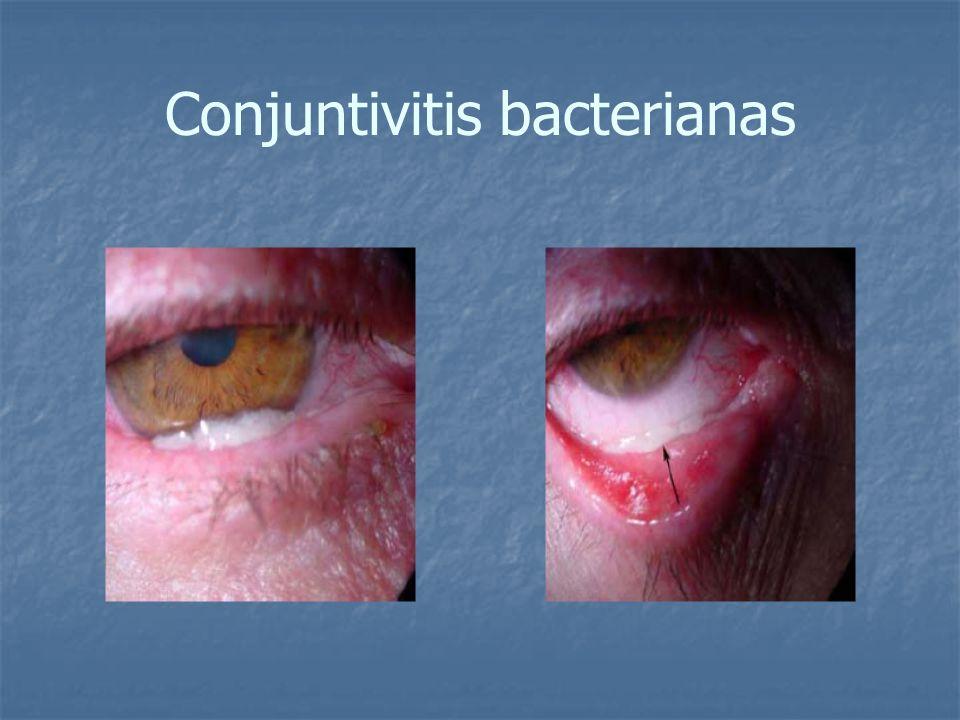 Conjuntivitis bacterianas