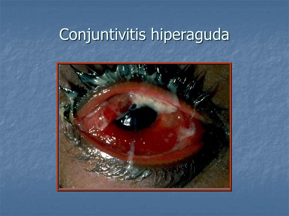 Conjuntivitis hiperaguda