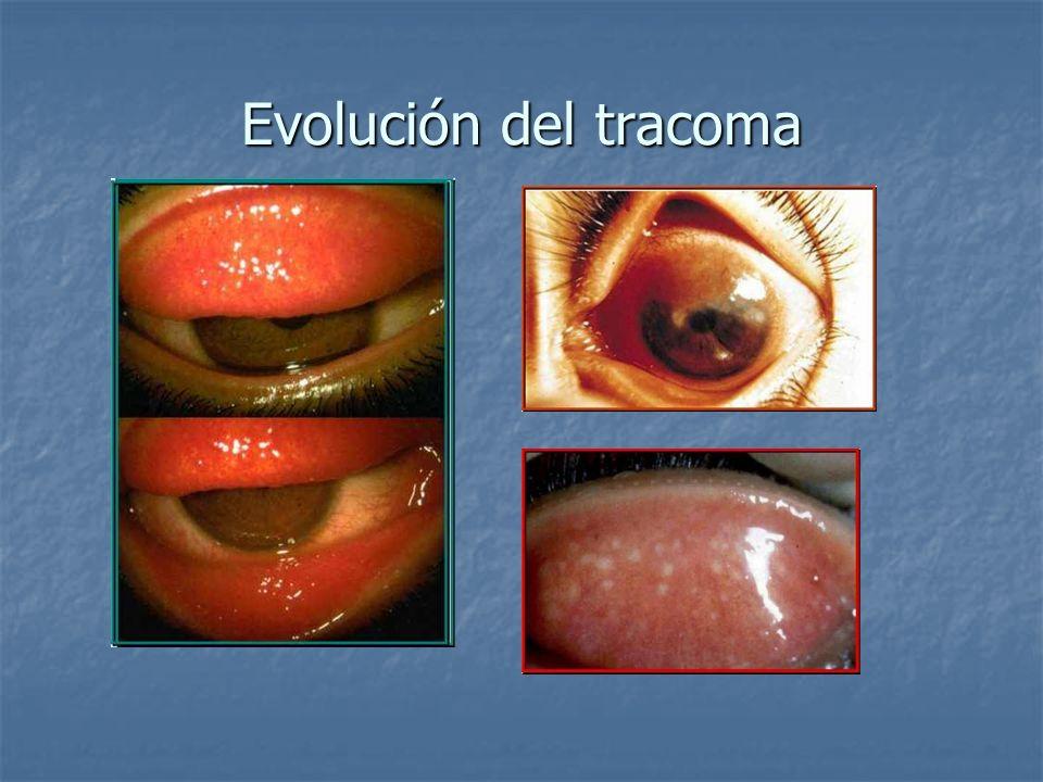 Evolución del tracoma