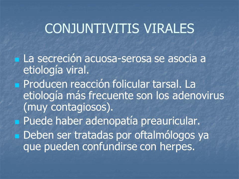 CONJUNTIVITIS VIRALES