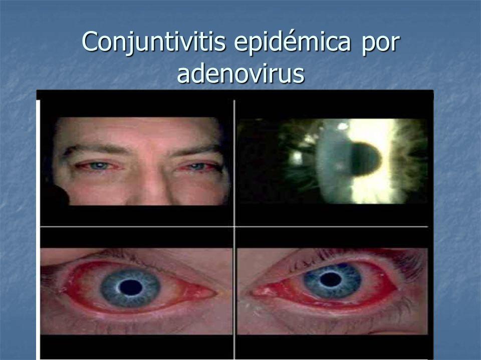 Conjuntivitis epidémica por adenovirus