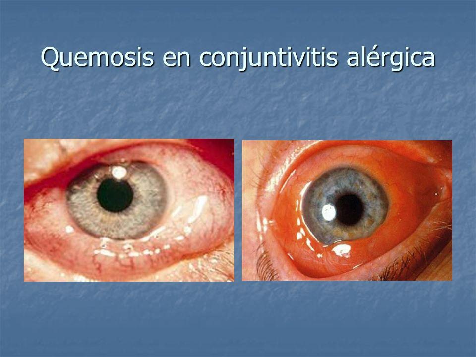 Quemosis en conjuntivitis alérgica