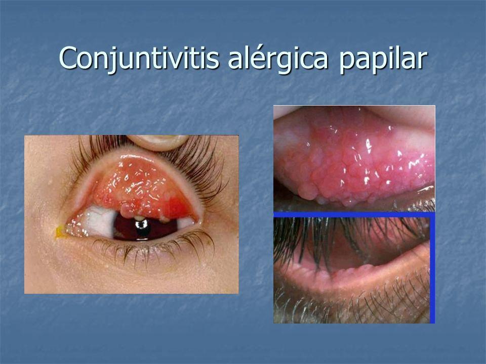 Conjuntivitis alérgica papilar