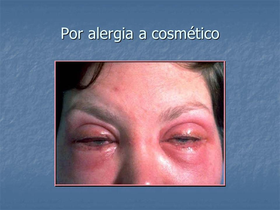 Por alergia a cosmético