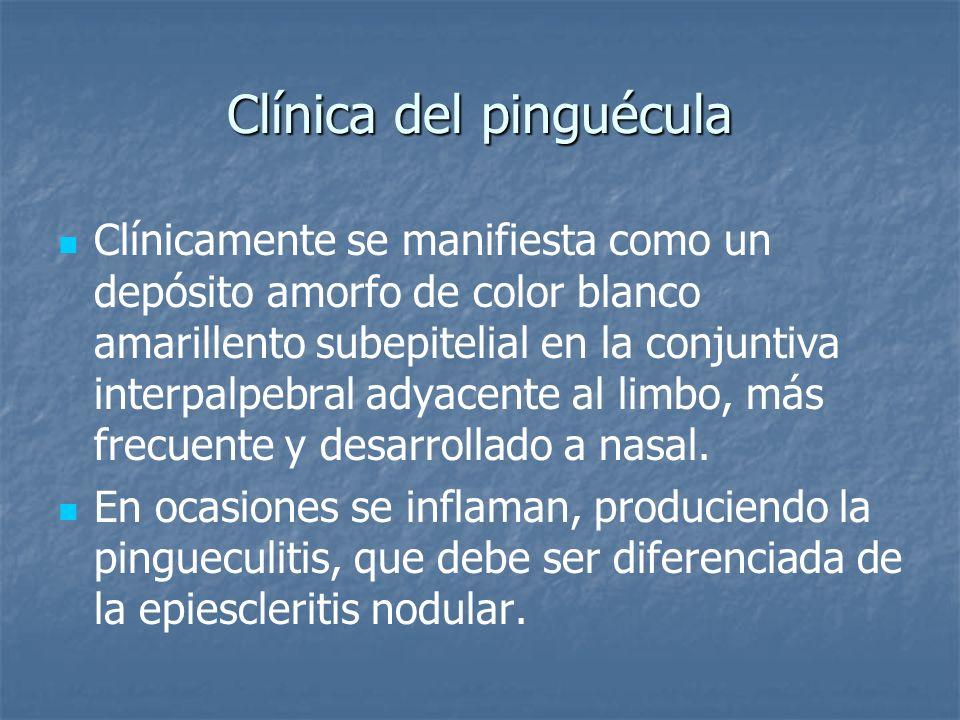 Clínica del pinguécula