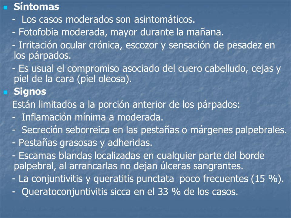 Síntomas - Los casos moderados son asintomáticos. - Fotofobia moderada, mayor durante la mañana.