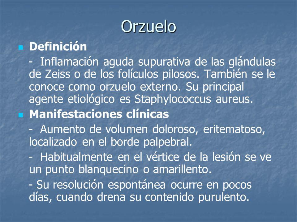 Orzuelo Definición.