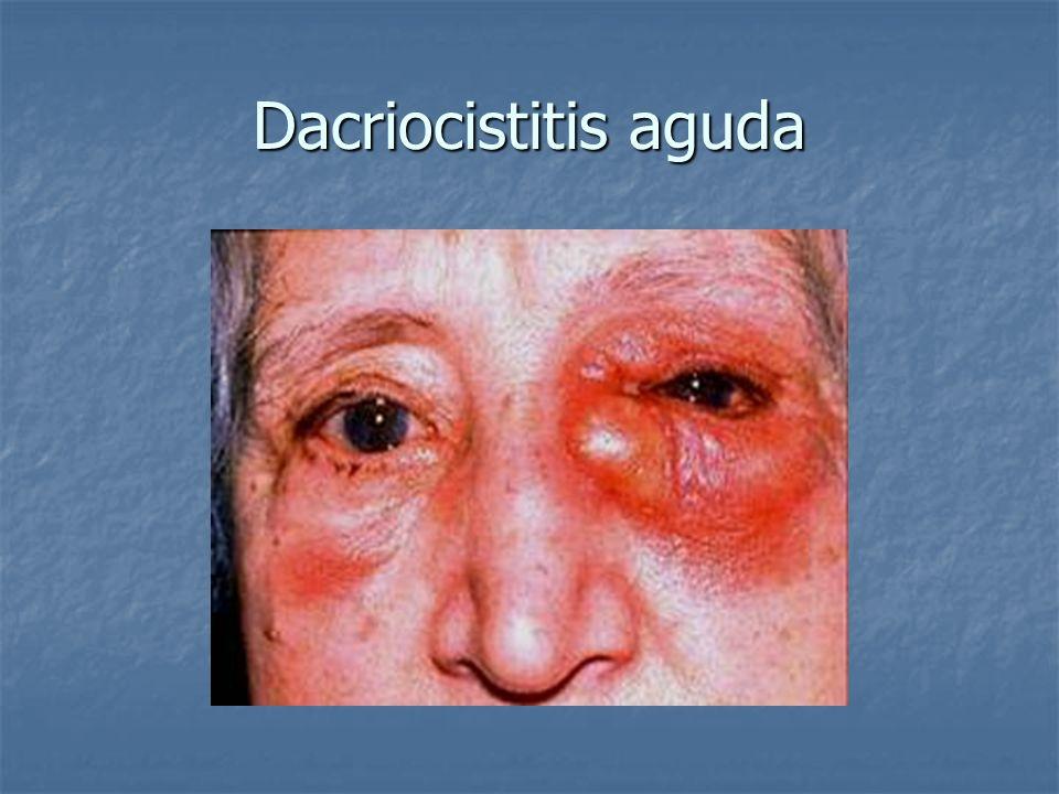 Dacriocistitis aguda