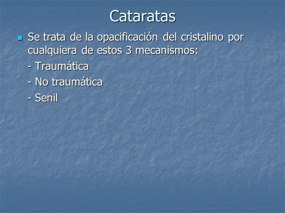CataratasSe trata de la opacificación del cristalino por cualquiera de estos 3 mecanismos: - Traumática.