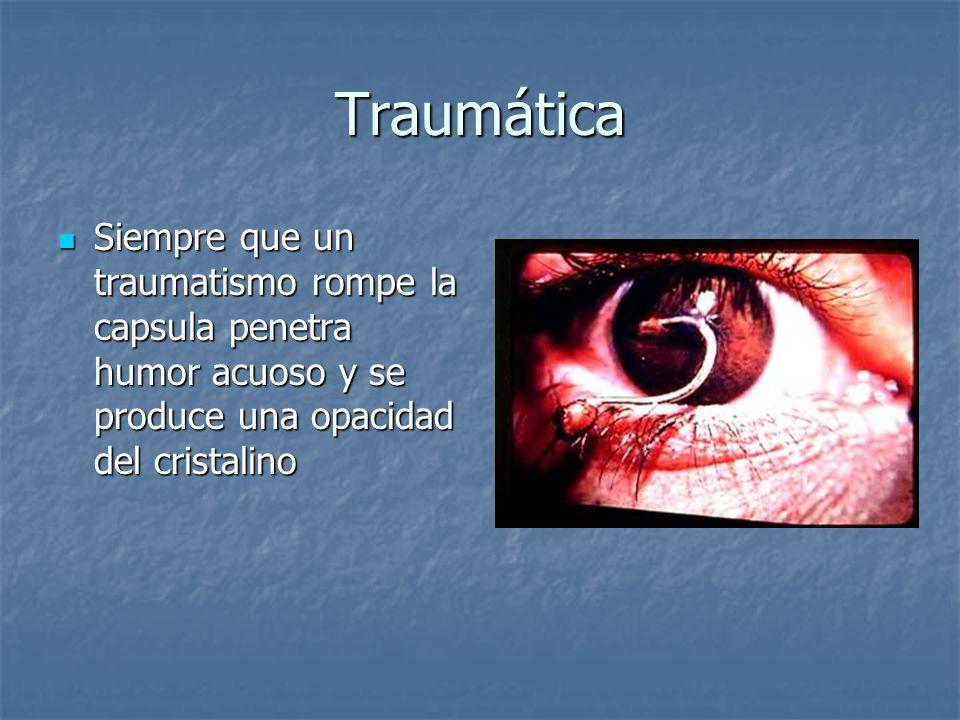 Traumática Siempre que un traumatismo rompe la capsula penetra humor acuoso y se produce una opacidad del cristalino.