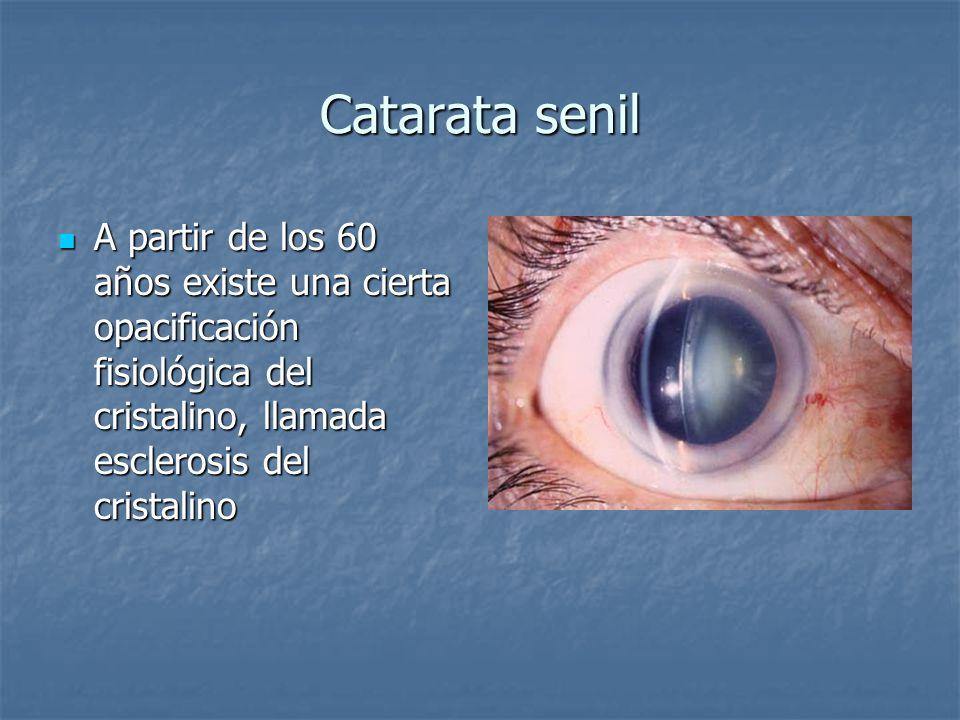 Catarata senil A partir de los 60 años existe una cierta opacificación fisiológica del cristalino, llamada esclerosis del cristalino.