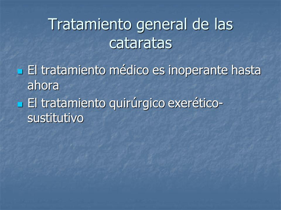Tratamiento general de las cataratas