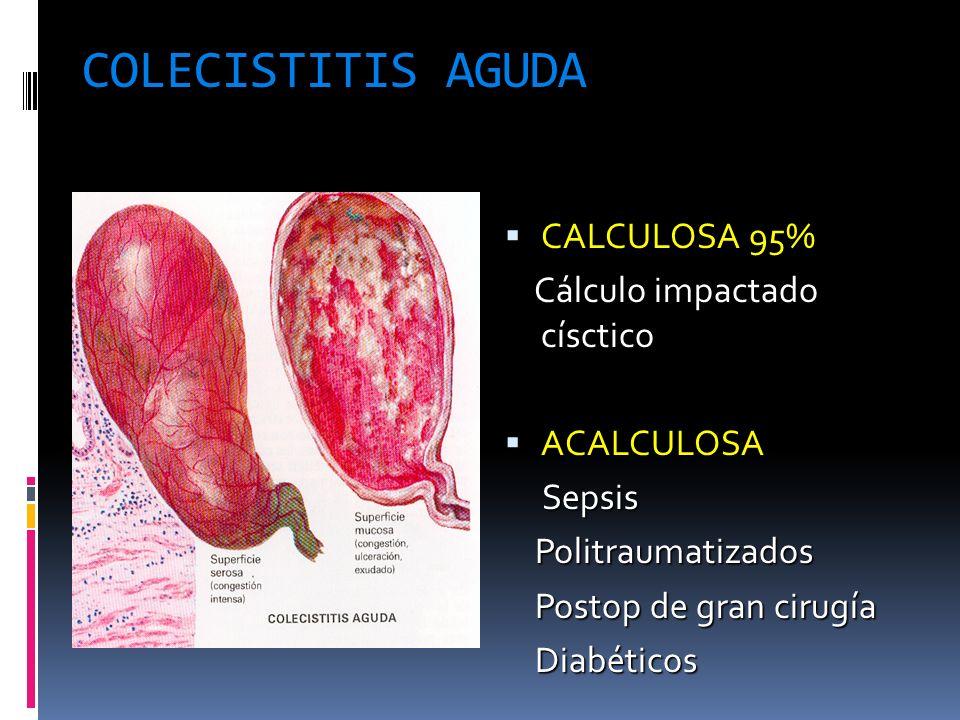 COLECISTITIS AGUDA CALCULOSA 95% Cálculo impactado císctico ACALCULOSA