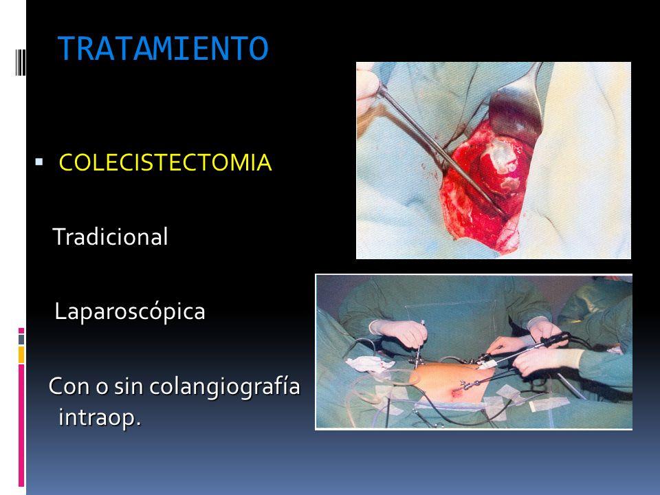 TRATAMIENTO COLECISTECTOMIA Tradicional Laparoscópica
