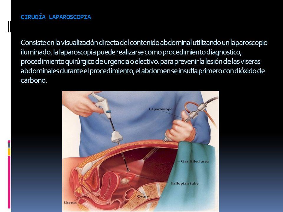 cirugía laparoscopia Consiste en la visualización directa del contenido abdominal utilizando un laparoscopio iluminado.