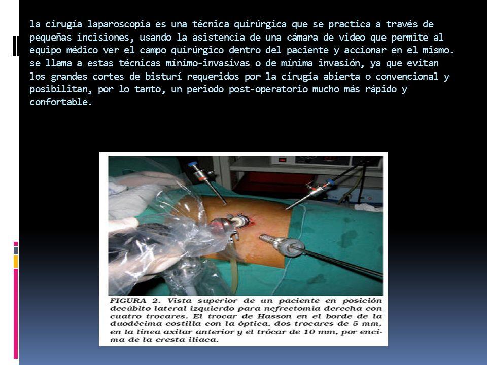 la cirugía laparoscopia es una técnica quirúrgica que se practica a través de pequeñas incisiones, usando la asistencia de una cámara de video que permite al equipo médico ver el campo quirúrgico dentro del paciente y accionar en el mismo.