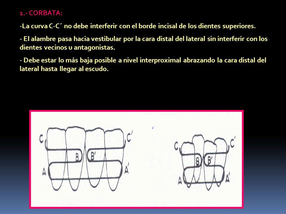 1.- CORBATA: La curva C-C´ no debe interferir con el borde incisal de los dientes superiores.