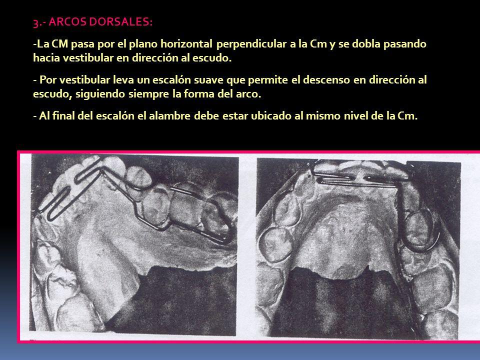 3.- ARCOS DORSALES: La CM pasa por el plano horizontal perpendicular a la Cm y se dobla pasando hacia vestibular en dirección al escudo.