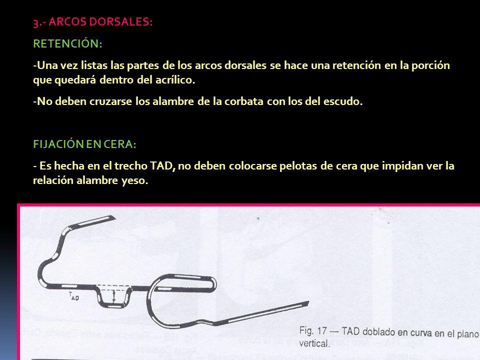 3.- ARCOS DORSALES: RETENCIÓN: Una vez listas las partes de los arcos dorsales se hace una retención en la porción que quedará dentro del acrílico.