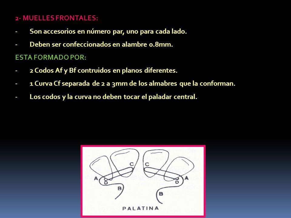 2- MUELLES FRONTALES: Son accesorios en número par, uno para cada lado. Deben ser confeccionados en alambre 0.8mm.