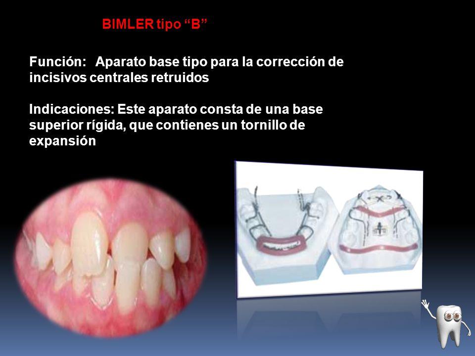 BIMLER tipo B Función: Aparato base tipo para la corrección de incisivos centrales retruidos.
